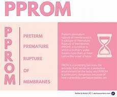 Premature Rupture Of Membranes What Is Pprom And How Should It Be Managed Birth Injury