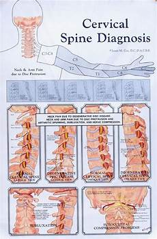 Arm Diagnosis Chart Cervical Spine Diagnosis Anatomy Poster Clinical Charts