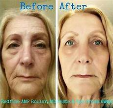 image result for redefine md before and after