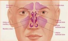 Sinus Anatomy Sinus Surgery Recovery Bookmark61 On Xanga