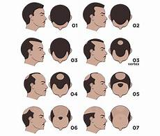 Norwood Scale Pattern Baldness Scale