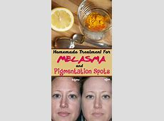Get rid of melasma and pigment spots with only 2 natural