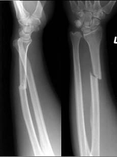 Galeazzi Fracture Galeazzi Fracture Dislocation Image Radiopaedia Org