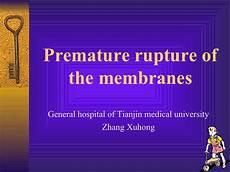 Premature Rupture Of Membranes 10 Preterm Rupture Of The Membranes