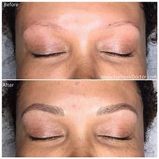 microblading before after images eyebrow doctor