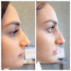 fillers temporary nose before after photos