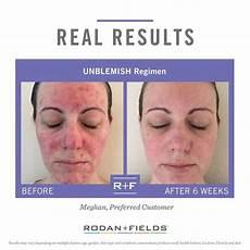 62 best rodan and fields unblemish acne regimen images on