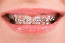 Brackets For Braces How Much Do Braces Cost In The Uk The Dental Guide
