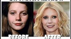plastic surgery pictures before and after part 2