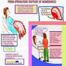 Premature Rupture Of Membranes Dear Nurses What Is Prom Premature Rupture Of Membranes
