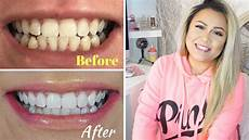 how i whiten my teeth at home before and after pics