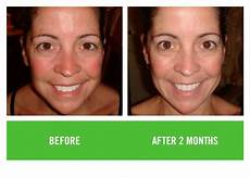 rodan fields before and after flipbook vol5