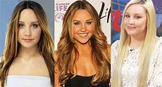 amanda bynes plastic surgery before and after pictures 2020