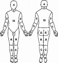 Burn Chart Body Chart For Estimating Severity Of Burn Wound Care Of Wounds