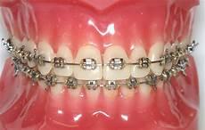 Brackets For Braces How Orthodontic Braces Work Kyger Orthodontics Blogkyger