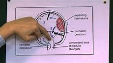 Uncal Herniation Head Injuries 9 Tentorial Herniation Youtube