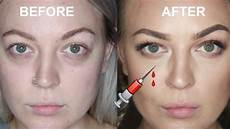 tear trough injections before and after vlog
