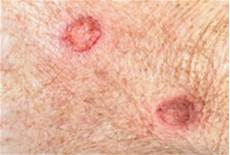 technology to help treat bed sores advanced tissue
