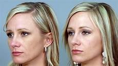botox treatments lehi botox injections saratoga springs