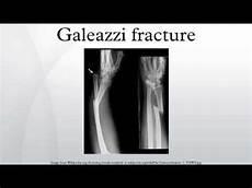 Galeazzi Fracture Galeazzi Fracture Youtube