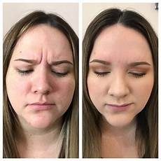 botox 174 dysport 174 before after flawless