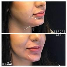 non surgical chin augmentation fillers skinviva manchester