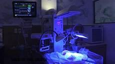 Jaundice Light Phototherapy Treatment In Nicu For Jaundice Youtube