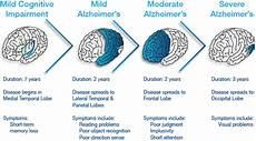Alzheimers Stages Chart Group 1 Presentation 1 Alzheimer S Disease Wiki
