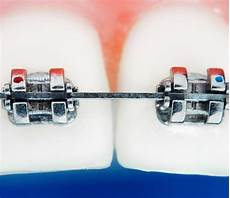 Brackets For Braces Why Did My Braces Brackets Fall Off South Surrey Smiles