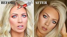 botox my experience before after pictures