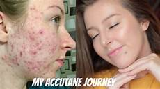 my isotretinoin accutane journey before and after