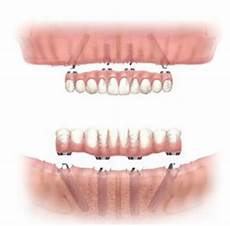 All On 4 All On 4 Dental Implants A Quick Solution For Fixed