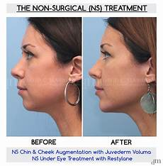 non surgical before and after results www sculptmd 514