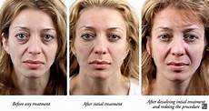 tear trough dermal fillers everything you need to
