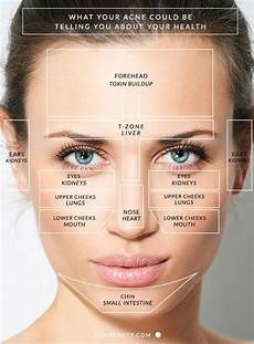 Chinese Acne Face Chart What Your Acne Is Trying To Tell You About Your Health