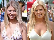 before and after a plastic surgery 21 pics