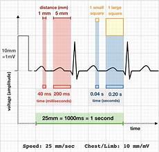 How To Read Cardiogram Chart Ecg Rate Interpretation Ekg Interpretation Medical