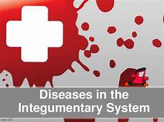 Integumentary System Diseases Integumentary System Diseases