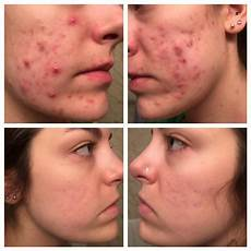 before and after accutane 6 months acne