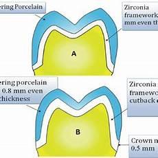 Crown Margin Design Pdf The Effect Of Zirconia Framework Design On The