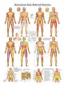 Visceral Referral Chart Sclerotome Visceral Referral Poster
