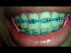 Light Blue Braces Power Chain Close Up Power Chain Youtube