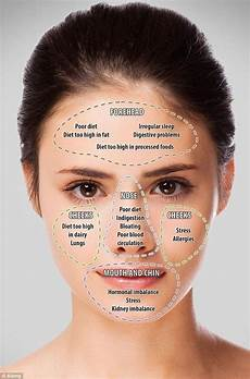 Chinese Acne Face Chart Chinese Face Mapping Skin Analysis Chart Video Instructions