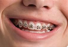 Brackets For Braces Wildsmiles Braces Dunegan Orthodontics