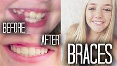 braces 101 before after