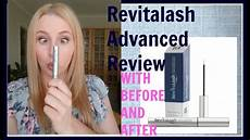 revitalash advanced review with before and after