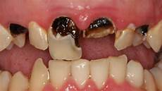 Dental Caries Dental Caries Definition Causes Symptoms And Treatment