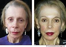 liquid facelift crutchfield dermatology