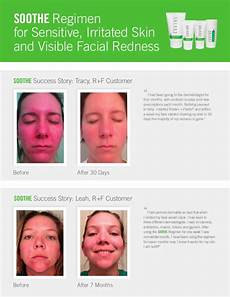 rodan fields spotlight on success skincare edition 1st