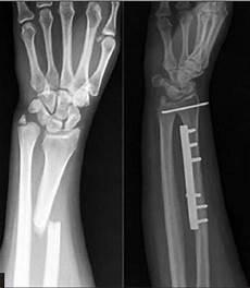 Galeazzi Fracture Galeazzi Fractures Trauma Orthobullets